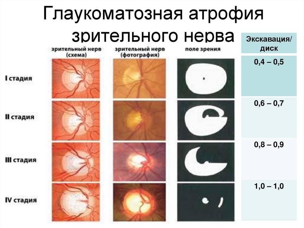 Атрофия зрительного нерва - что это, причины, симптомы и лечение