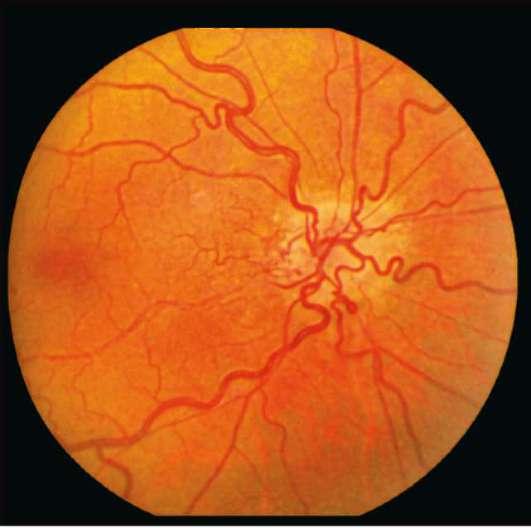 Расширенные сосуды глазного дна причины