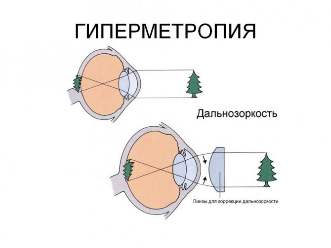 Что такое гиперметропия слабой степени (1 степень)