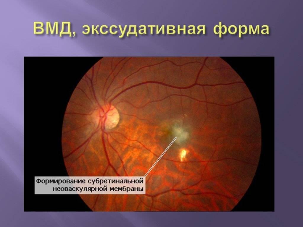 Современное лечение макулодистрофии сетчатки глаза