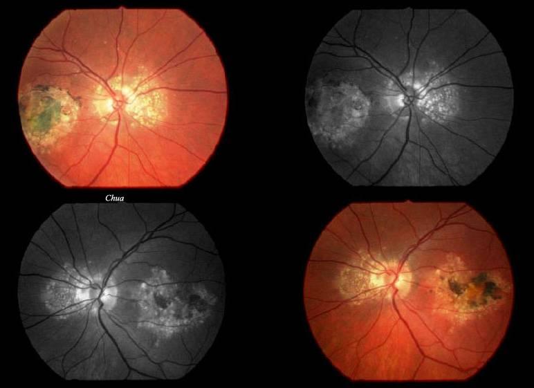 Дистрофия сетчатки глаза - что это такое, причины, симптомы и диагностика дегенерации сосудистой оболочки глазного дна