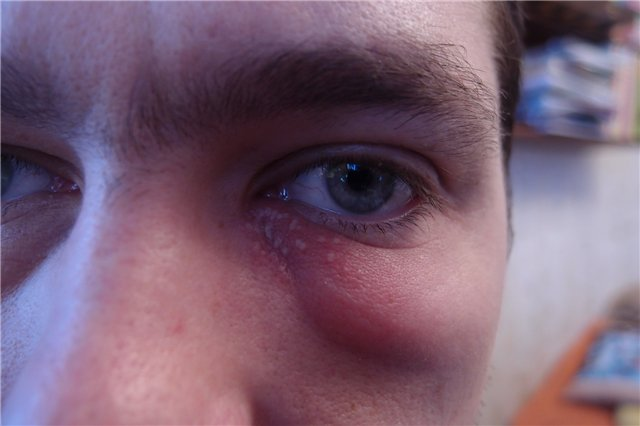 Отёк под глазом с одной стороны: причины и способы устранения oculistic.ru отёк под глазом с одной стороны: причины и способы устранения