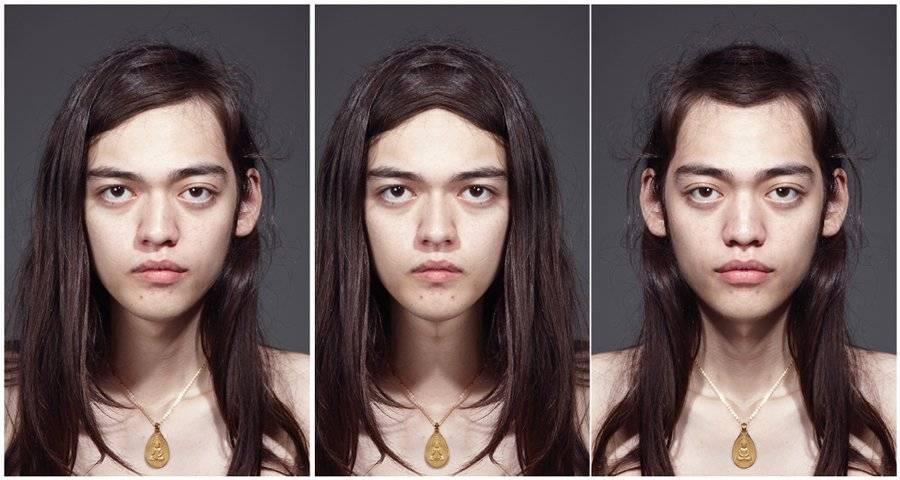 Асимметрия лица проявиться в подростковом возрасте. как исправить асимметрию лица без операции: профилактика, основные методы лечения