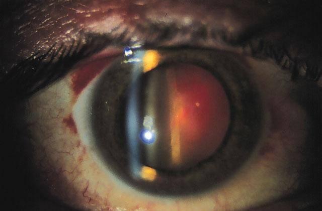 Кровоизлияние в стекловидное тело (гемофтальм)