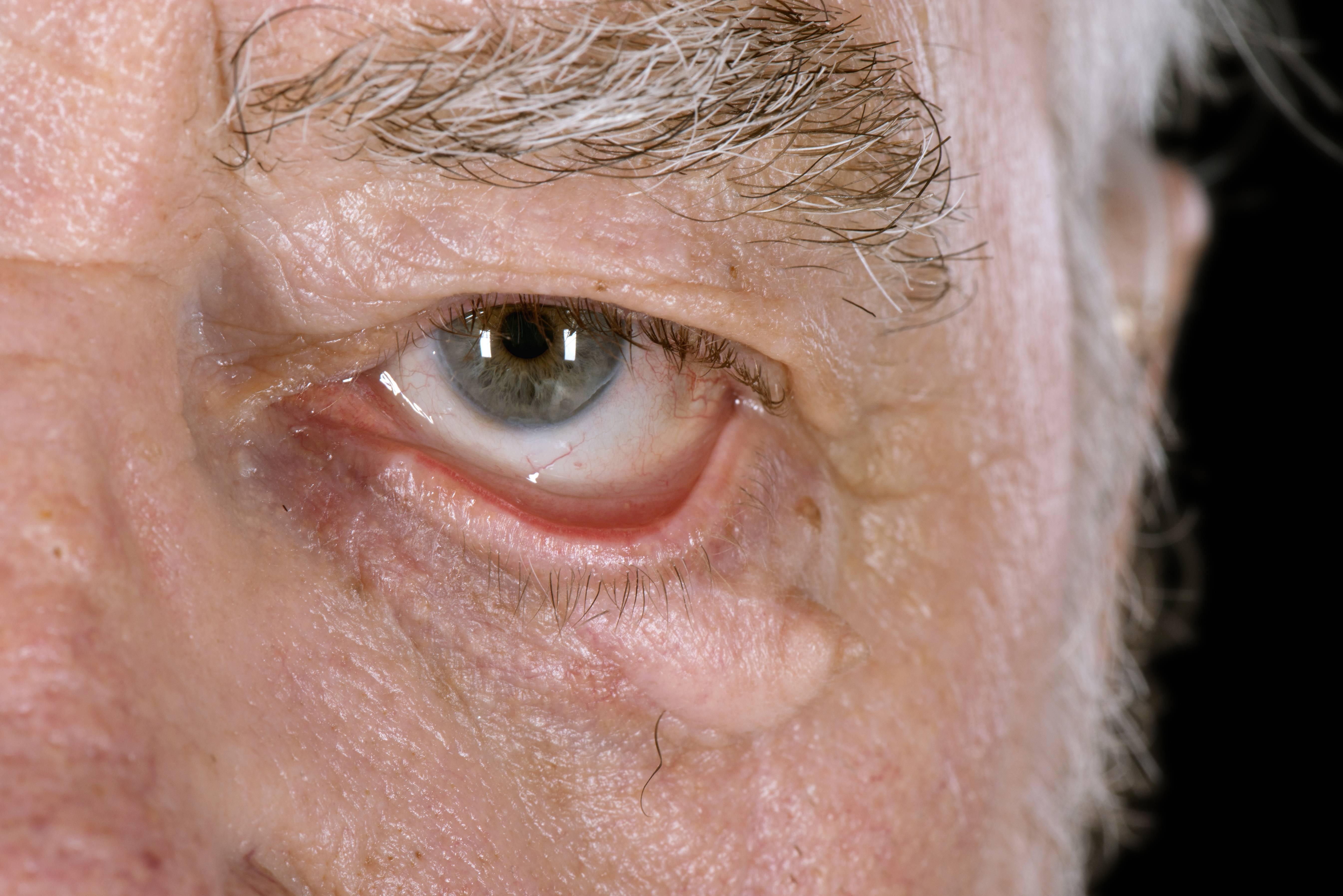 Выворот века (эктропион), причины, симптомы, лечение. все о глазных болезнях.