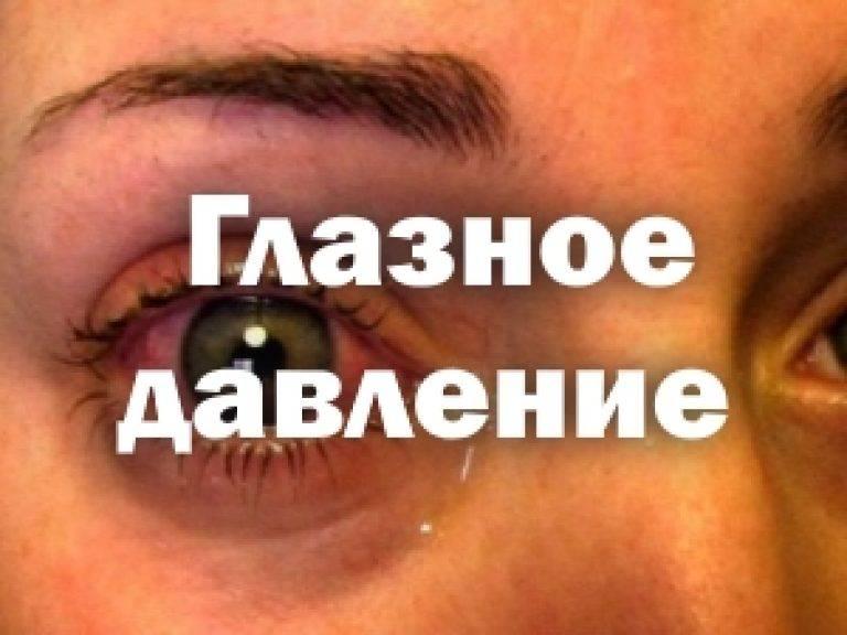 Как снизить глазное давление в домашних условиях: лечение