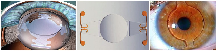 Интраокулярные линзы иол обзор цена имплантации отзывы - медицинский справочник medana-st.ru