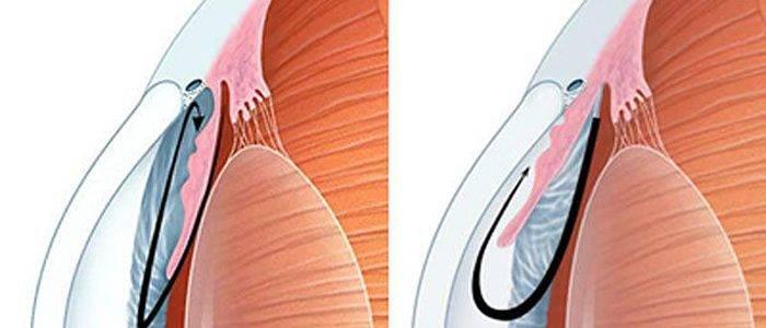 Открытоугольная глаукома – как избежать потери зрения?