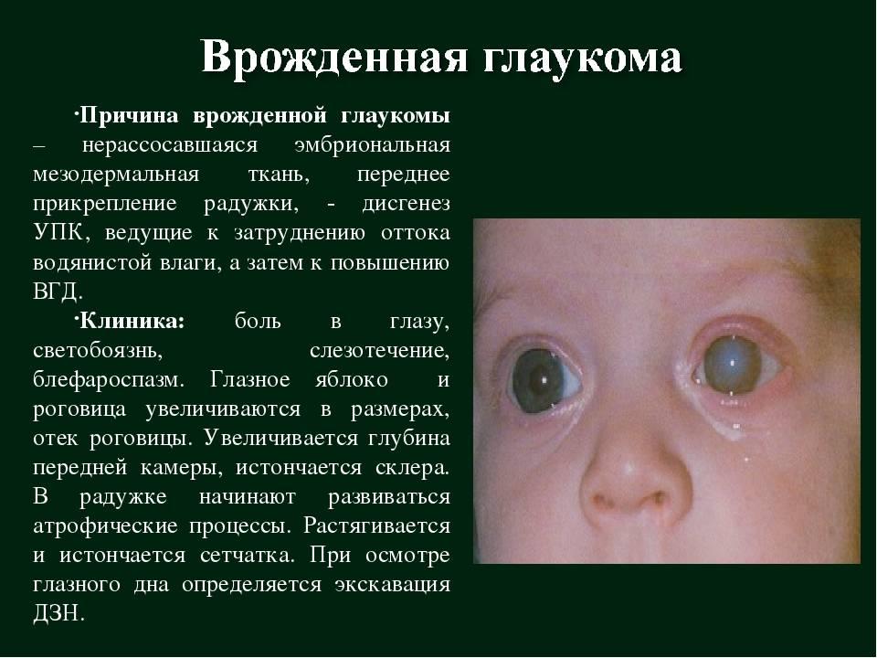 Врожденная глаукома у детей - что это, лечение, причины, симптомы