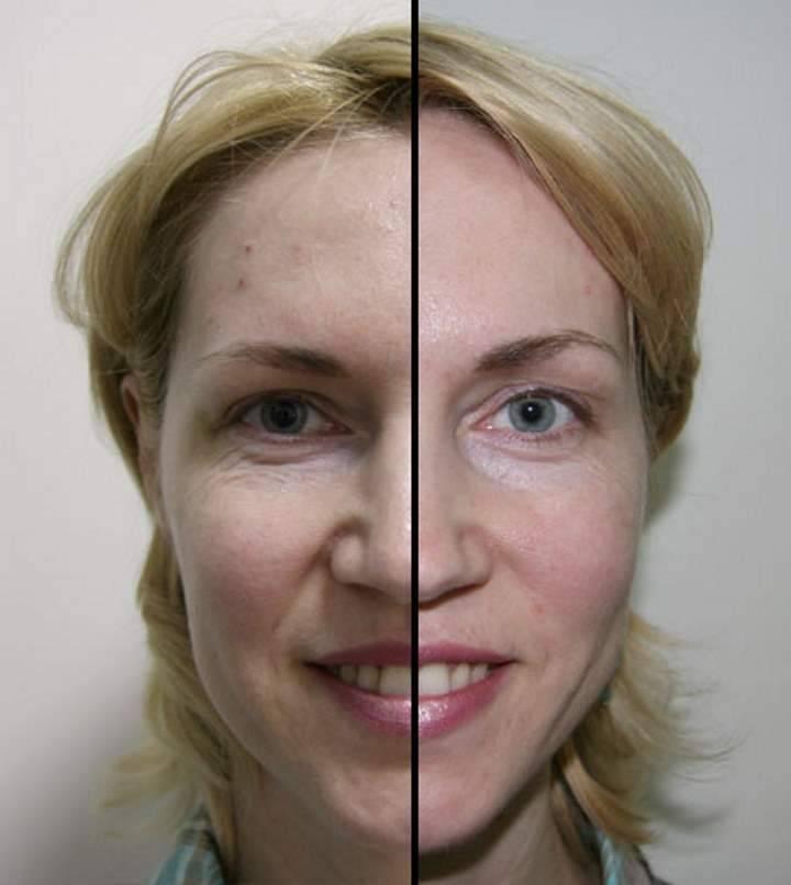 Как исправить асимметрию лица: две гимнастики против асимметрии