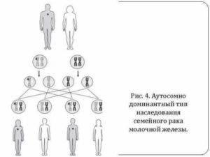 Косоглазие у взрослых: лечение, как исправить без операции, причины, передается ли по наследству