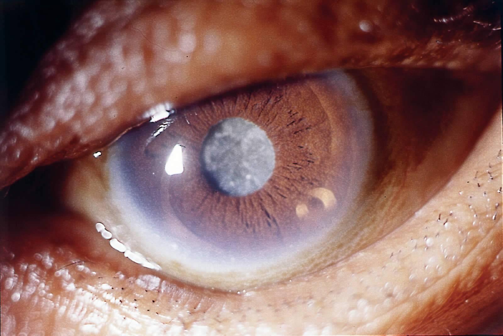 Причины помутнения роговицы глаза и способы лечения
