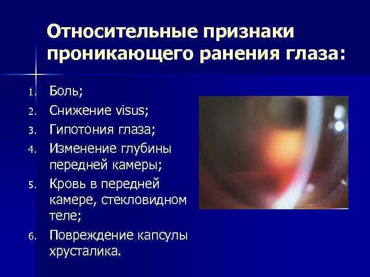 Повреждение роговицы глаза - травмы и раны, ожоги, первая помощь