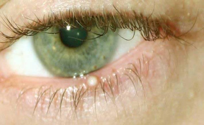 Пузырьки на веках под ресницами, лечение глаз, профилактика