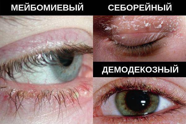 Лечение мейбомиевого блефарита