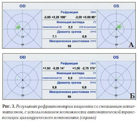 Авторефрактометрия: показания, противопоказания и расшифровка