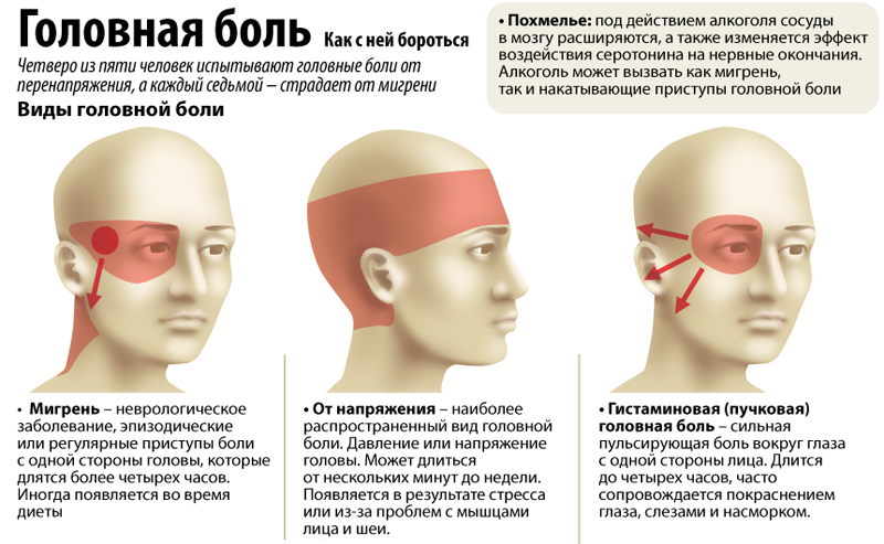 Болит левая часть головы: причины, диагностика, лечение
