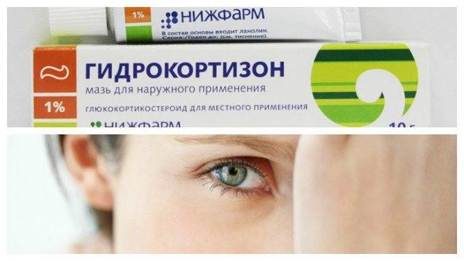 Левомеколь при ячмене на глазу - глазная мазь гидрокортизон от ячменя на глазу | медицинский портал spacehealth