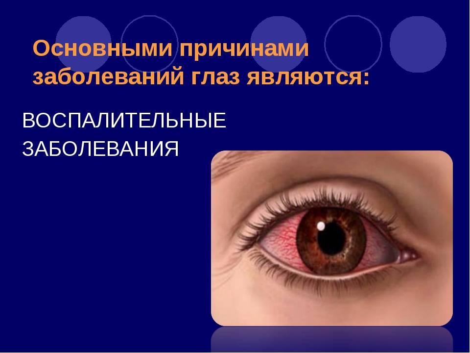 Болезни глаз у человека: список заболеваний, симптомы и особенности лечения