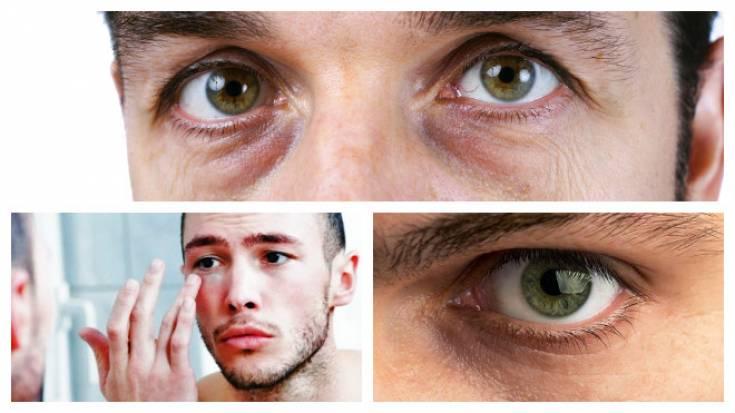 Темные круги под глазами у мужчин: причины появления, лечение