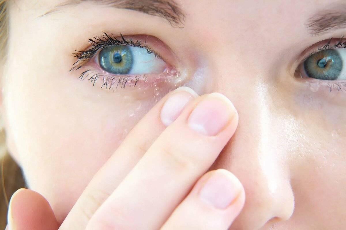 Симптом песок в глазах. консультация врача-офтальмолога