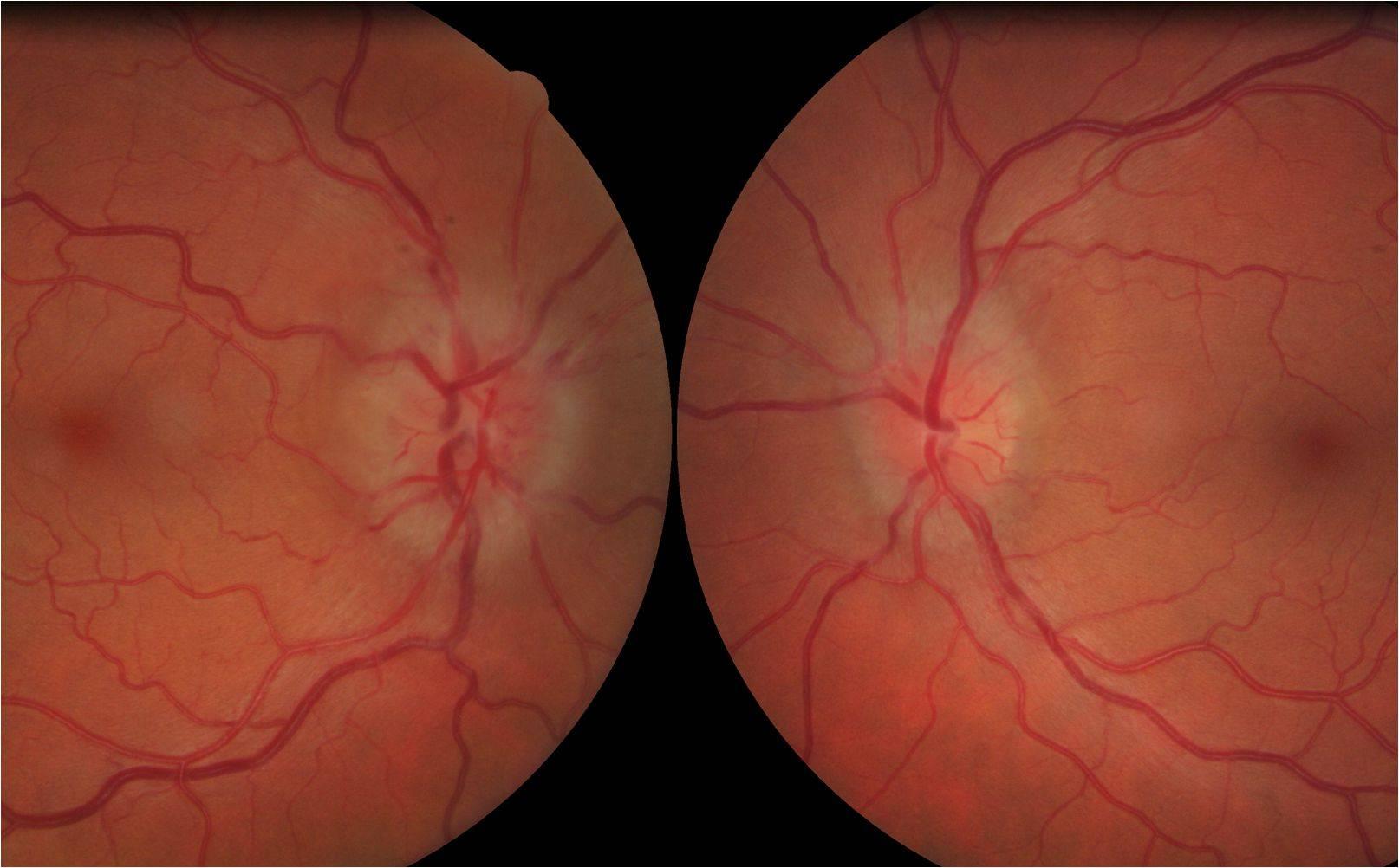 Неврит зрительного нерва | компетентно о здоровье на ilive