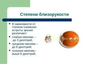 Миопия слабой степени при беременности: методы лечения близорукости