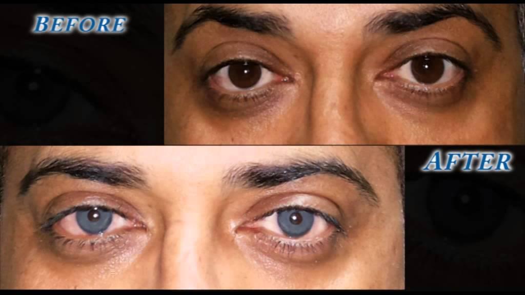 Как проводится операция по изменению цвета глаз и какой оттенок можно получить