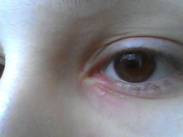 Красное пятно на белке глаза: причины и что делать
