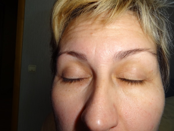 Желтые круги под глазами: причины косметического и медицинского характера