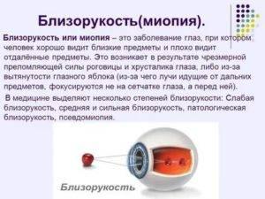 Можно ли восстановить зрение при близорукости?