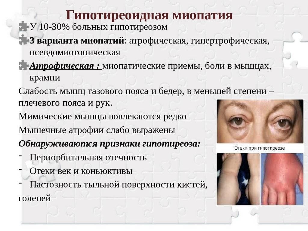Миопатический синдром: причины, симптомы, диагностика | компетентно о здоровье на ilive