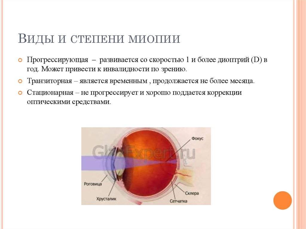 Восстанавливаем зрение: лазерная коррекция близорукости