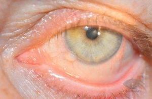 Причины появления кисты на глазу и способы лечения