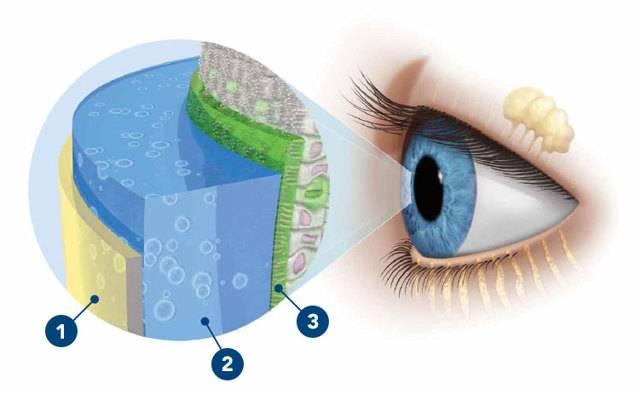 Сухой глаз: симптомы и лечение народными средствами