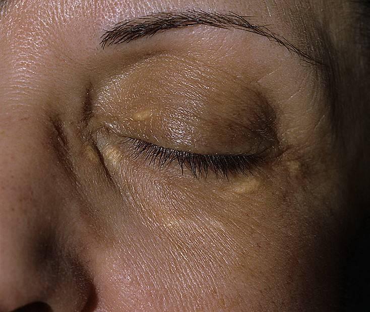 """Ксантелазма век: способы лечения - """"здоровое око"""""""