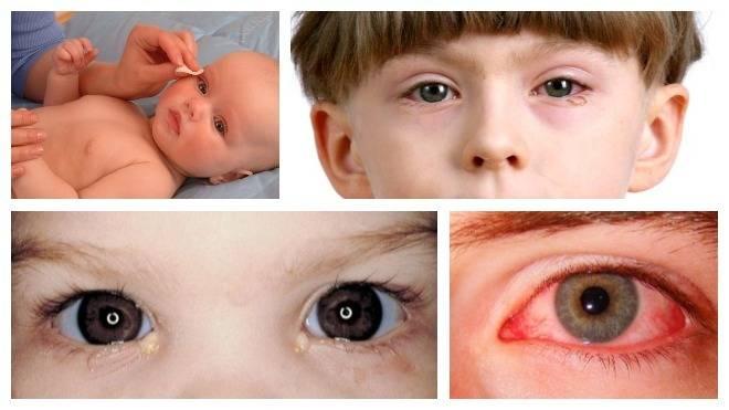 Конъюнктивит у ребенка: лечение в домашних условиях, рецепты, что бы быстро вылечить болезнь малышам в 2-4 года