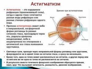 Снижение зрения у детей: причины