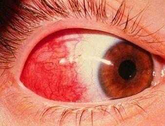 Эписклерит глаза. описание и лечение. мнение офтальмолога