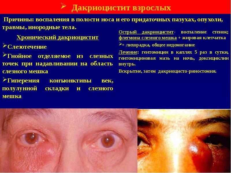 Дакриоцистит у взрослых: причины и симптомы, лечение медикаментозными и народными способами, профилактика