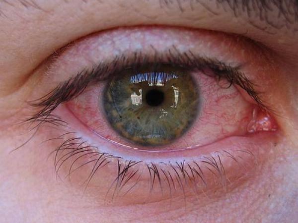 Продуло глаз: воспалительный процесс и лечение патологии