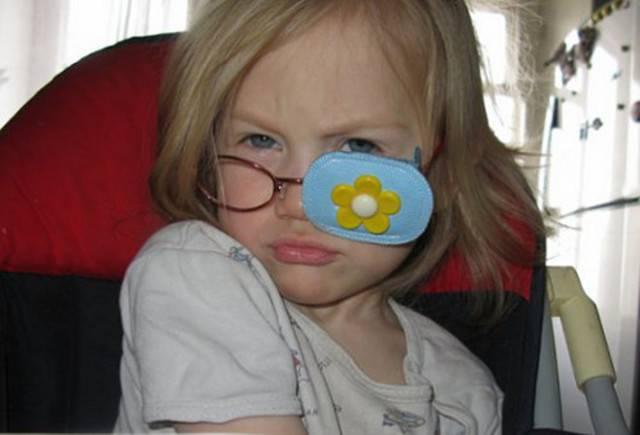 Помогут ли очки от косоглазия? правила выбора окуляров