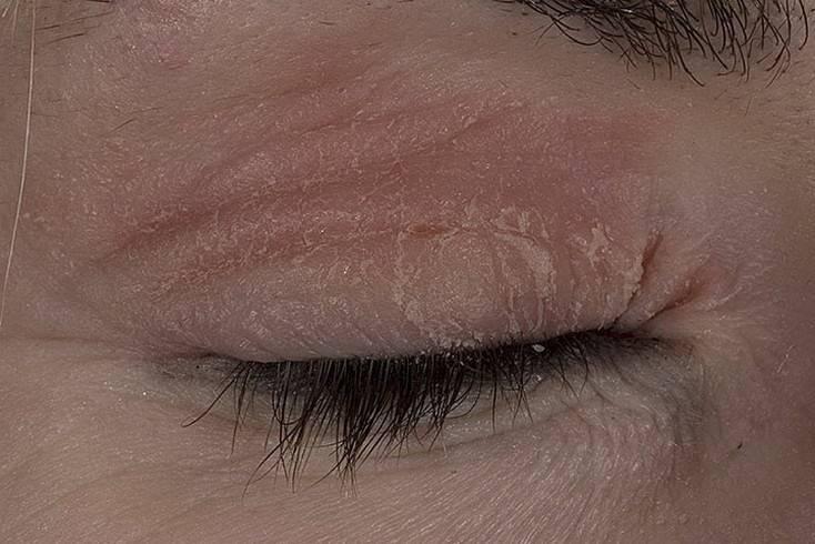 Красные пятна под глазами - причины шелушения вокруг глаз