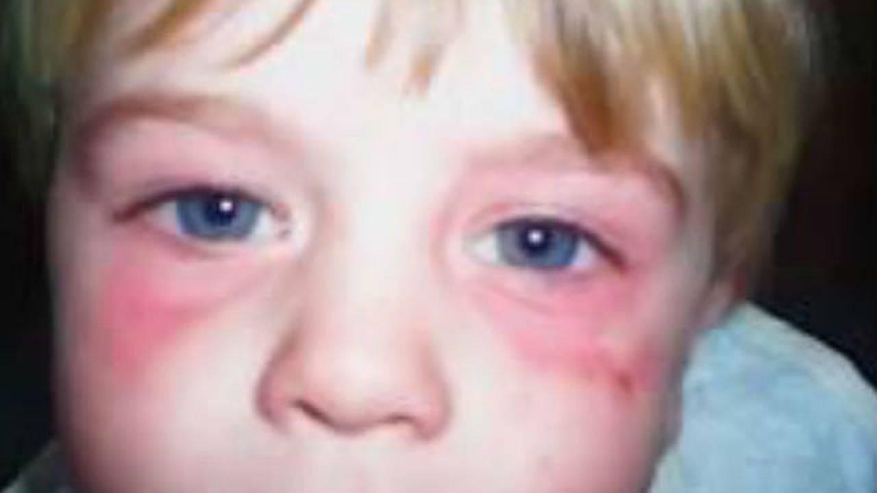 Аллергия на глазах: симптомы, причины, как лечить