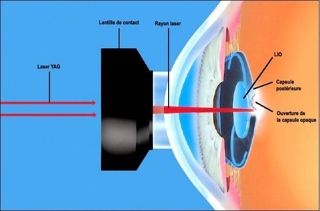 Операция при катаракте: единственный ли выход, показания, проведение, восстановление