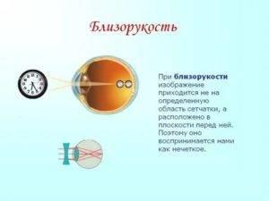 Симптомы ухудшения зрения у детей, взрослых, при беременности