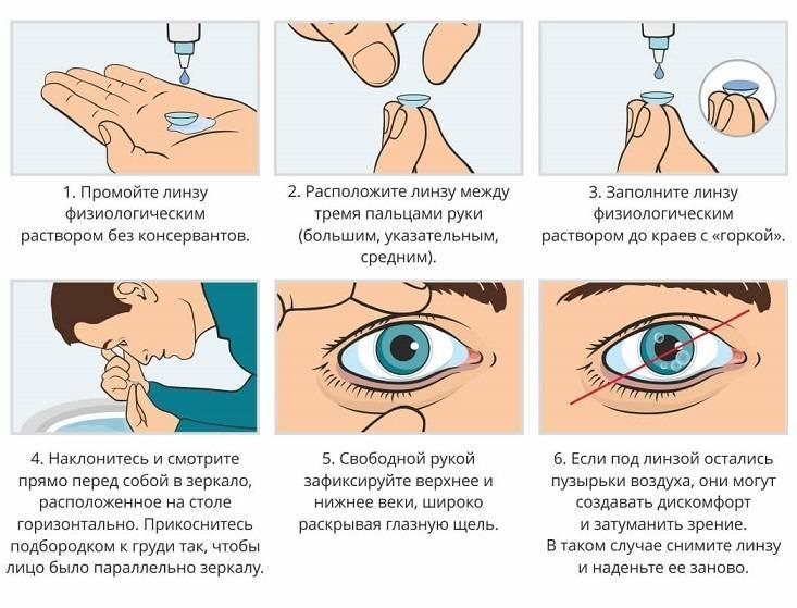 Как пользоваться линзами для глаз (контактными): как правильно начать применение, также правила и рекомендации по снятию, надеванию и уходу