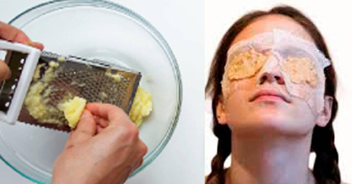 Картофель от синяков под глазами, в том числе от удара, отеков, морщин, темных кругов: полезные рецепты масок из сырого овоща для кожи возле век