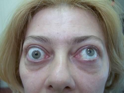 Почему глаза на выкате – болезнь выпученных глаз