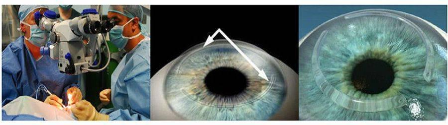 Интрастромальные кольца в клинике микрохирургии глаза